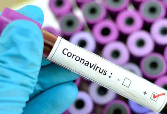 15 new cases of coronavirus in Greece over the last 2 days and 1 death